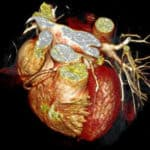 Coronary CT Angiogram
