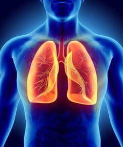 Lung Cancer Screening Picture